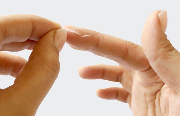 Чем очистить с рук супер клей момент